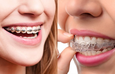 Tips For Heading Back to School With Braces