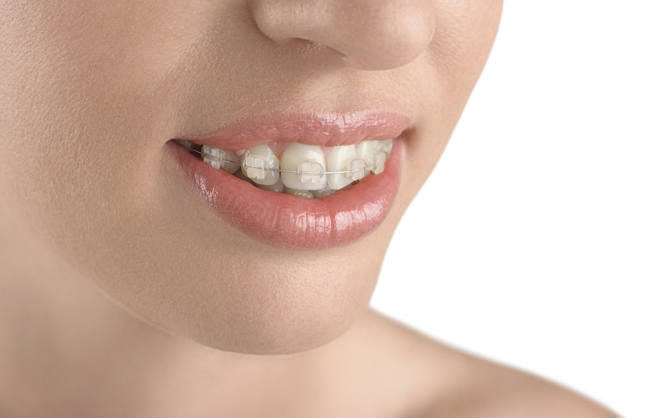 All-About-Braces