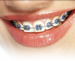 Smiling mouth with metal braces.