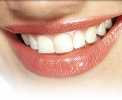 Smiling mouth with Invisalign aligners.
