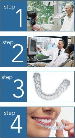 Step 1 – Orthodontist talking to female patient in treatment chair. Step 2 – Orthodontist pointing to computer screen and explaining Invisalign treatment to patient. Step 3 – Invisalign clear aligner, which is custom made for the patient's teeth. Step 4 – Female patient removing final clear aligner to reveal beautiful smile.